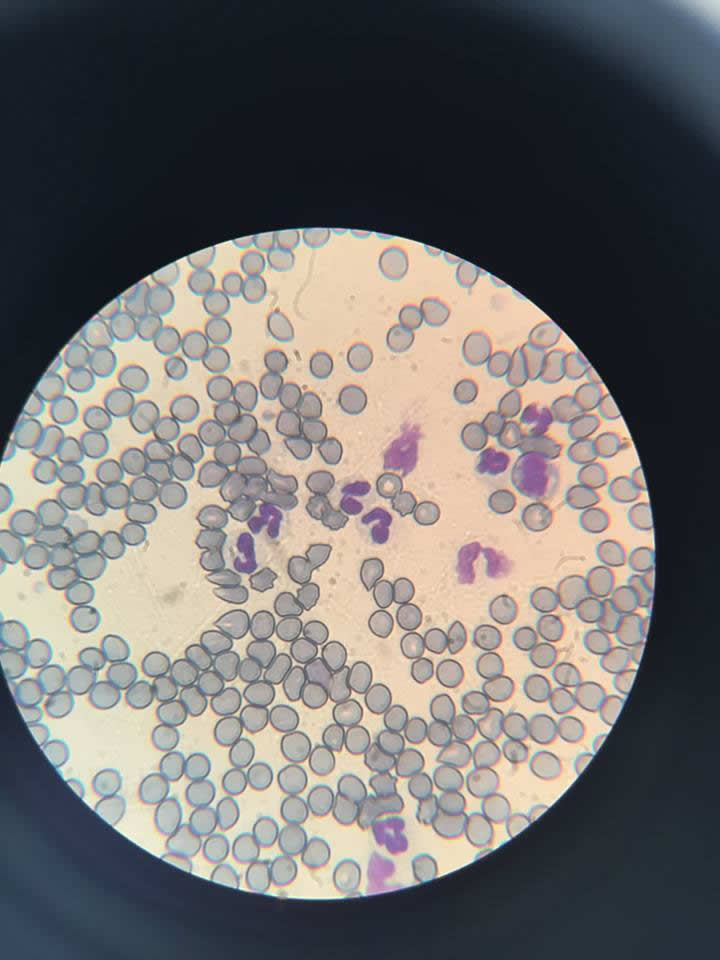 Cells under microscope at Ashfield House Vets laboratory showing a blood smear, with the blue/grey cells being red blood cells, and the pink cells with purple-lobed centres being the white blood cells that fight infection.