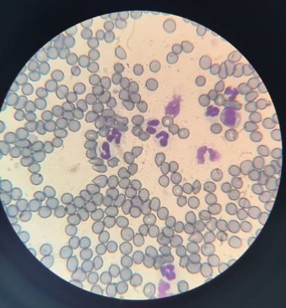 blood sample under microscope